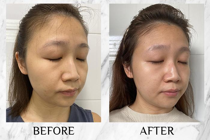 Oh Hello Bae Aloha Skin Enzyme Resurfacing Serum review annabel