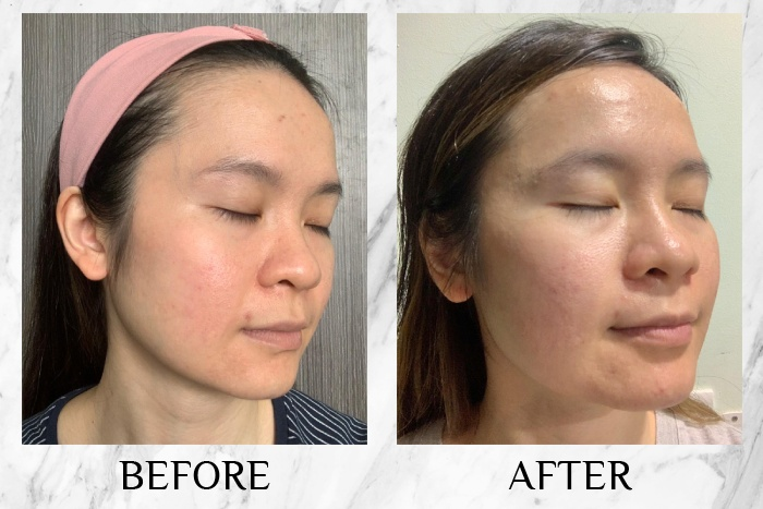 himalaya acne care regimen before after shirley