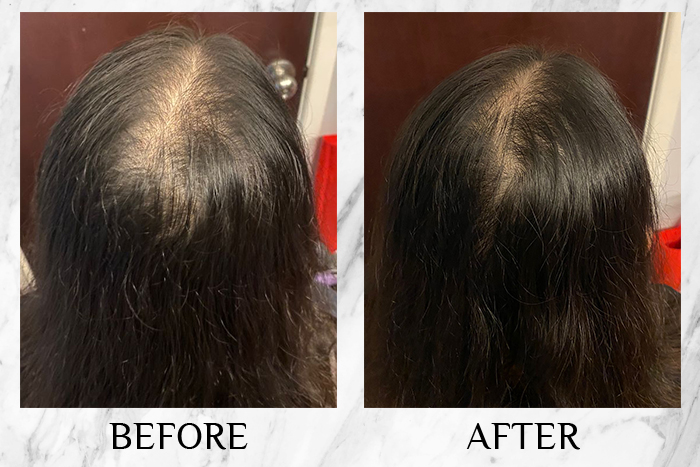 Diane Perfect Beauty Extra Hair Fall Control review elaine