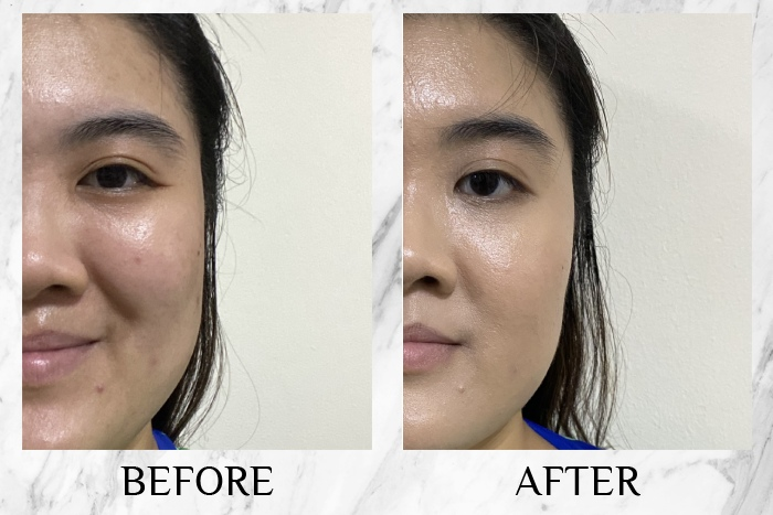 aprilskin magic snow cushion review before after